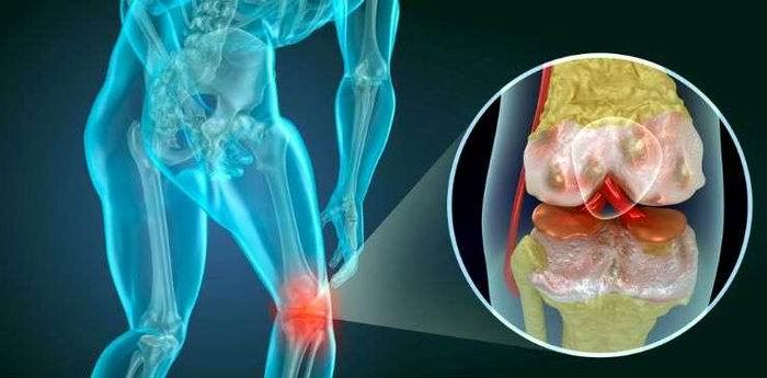 ¿Qué hacer cuando duelen las rodillas?