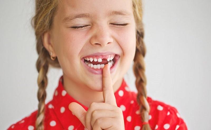 Todos necesitan conocer sobre los dientes de leche