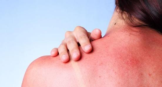En este intenso verano, conozca sobre remedios naturales para la insolación