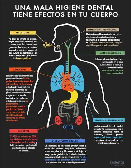 Deficiente higiene oral puede traer aterosclerosis en la edad adulta