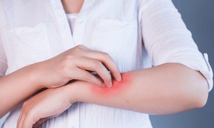 Algunos consejos útiles para padecimientos de la piel e infecciones bacterianas