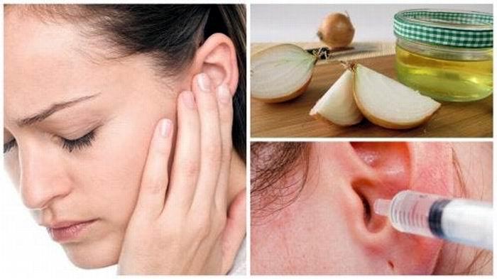 Adiós al dolor de oídos con remedios caseros