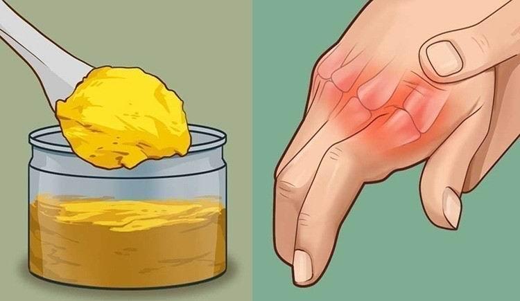 Cúrcuma para bajar las inflamaciones de la piel