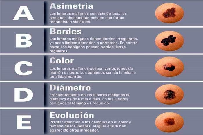 El cáncer de piel se cura