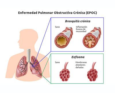 COVID-19 y los pacientes con enfermedades crónicas