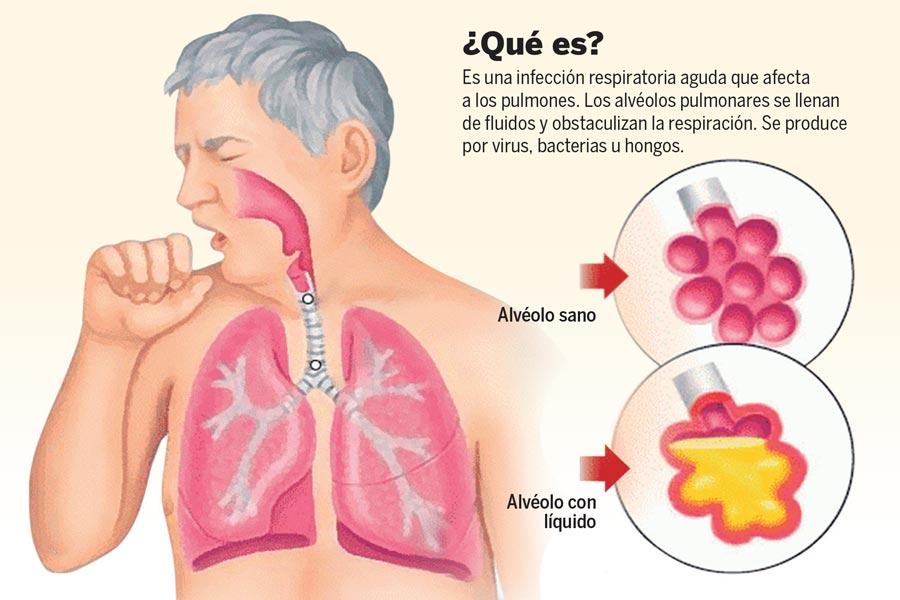 Neumonía, no un común resfriado