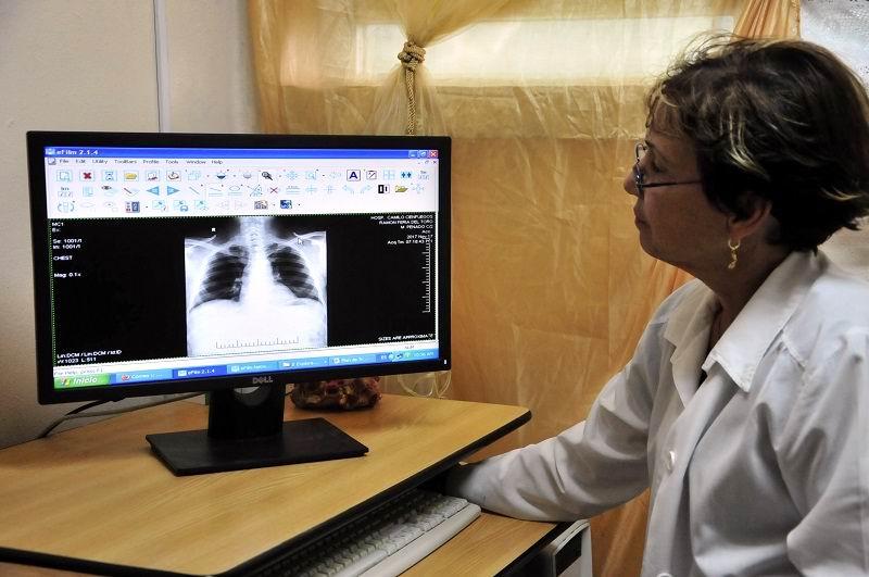 Funciona en Santiago de Cuba nueva tecnología digital para radiografía