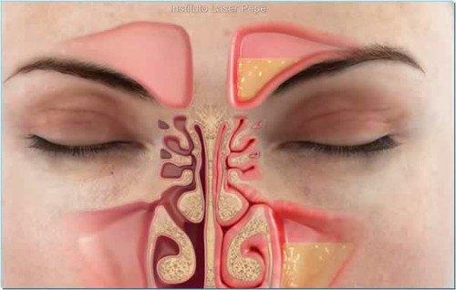 Fuera la congestión nasal en menos de un minuto