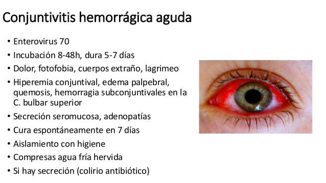 Debemos prevenir el brote de conjuntivitis hemorrágica epidémica