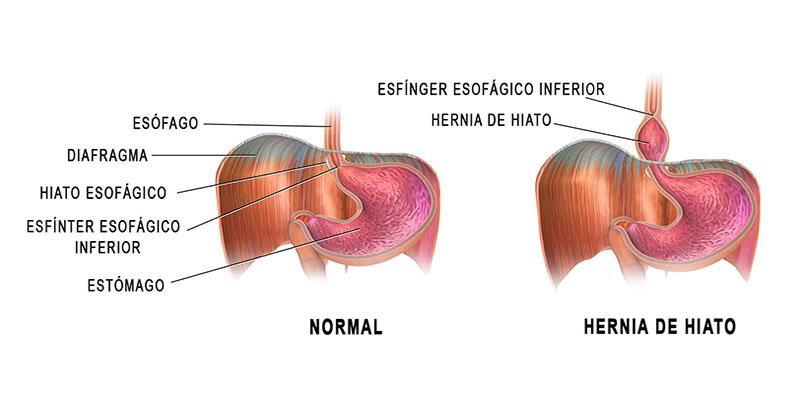 Consejos para la Hernia Hiatal