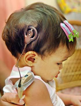 Cuba con logros en implante coclear para foro mundial. Foto Radio Cadena Agramonte