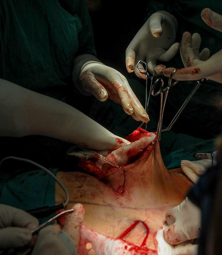 Aplica Cuba por primera vez novedoso proceder quirúrgico en paciente con cáncer de mama