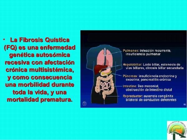 Científicos cubanos establecen estrategia para el diagnóstico molecular de la Fibrosis Quística