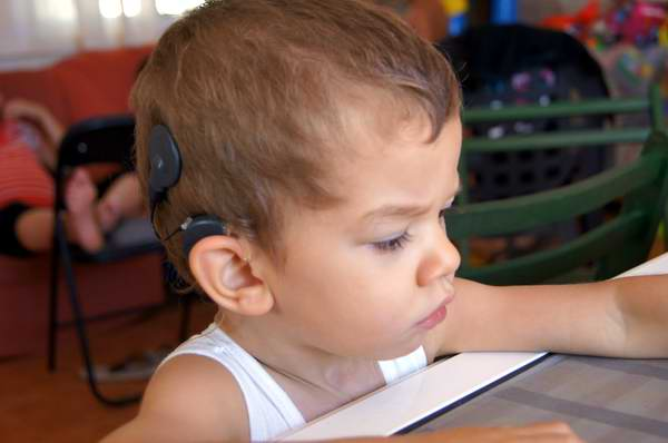 Cuba has carried out 510 cochlear implant surgeries