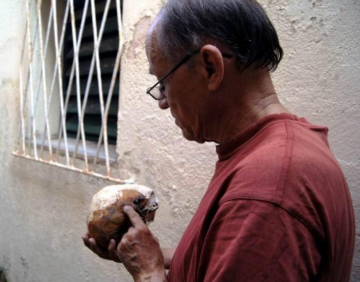 Las sustancias balsamicas empleadas para el embalsamamiento penetraron profundamente los huesos, tanto asi como la pasta de alumbre y yeso con que fue recubierto el cuerpo.